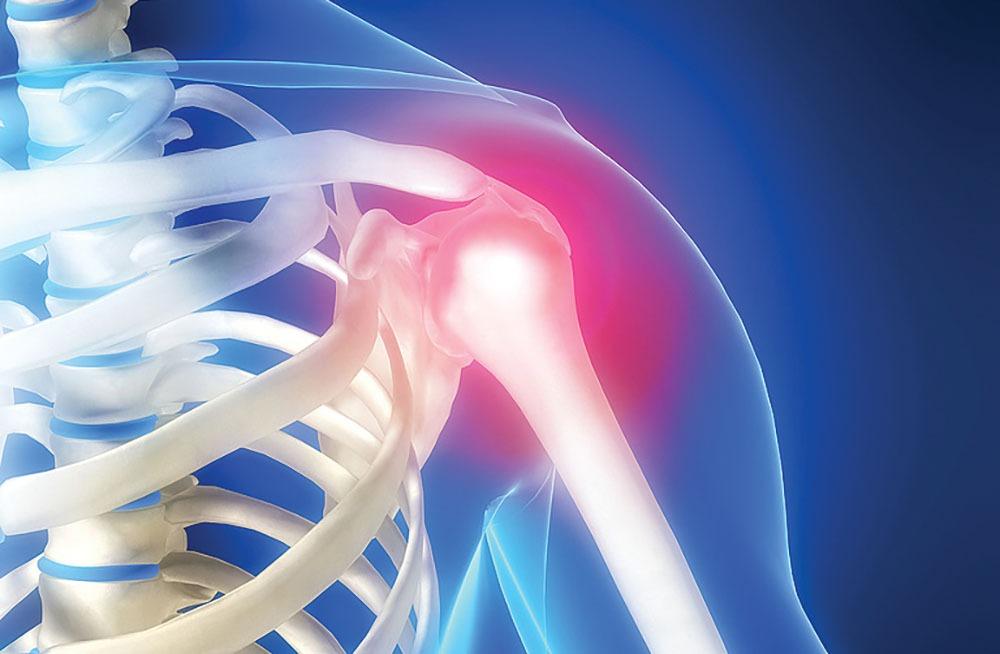 dureri de umăr după volei dureri la nivelul încheieturilor și tratament